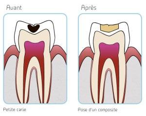 illustration carie débutante et pose d'un composite copyright Le studio dentaire