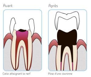 illustration carie atteignant le nerf et pose d'une couronne copyright le studio dentaire