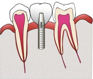 illustration couronne sur implant par le studio dentaire