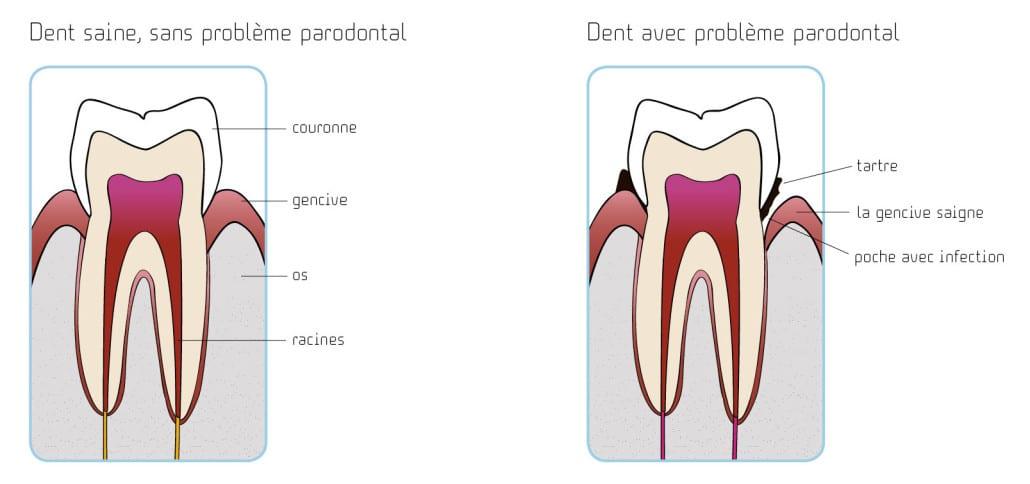 traitement parodontal illustration dent saine et dent avec parodontite
