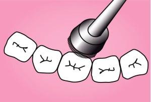 illustration prophylaxie pour le studio dentaire