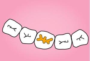 illustration carie prophylaxie dentaire par le studio dentaire lyon