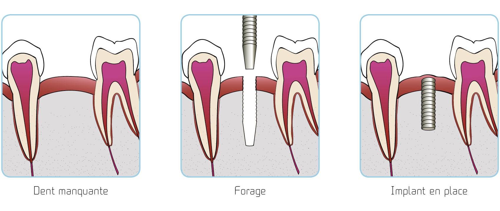 illustrations pose implant étape par étape copyright studio dentaire lyon