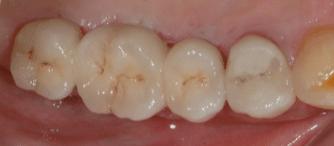 Implant-touati-dentiste-lyon-3