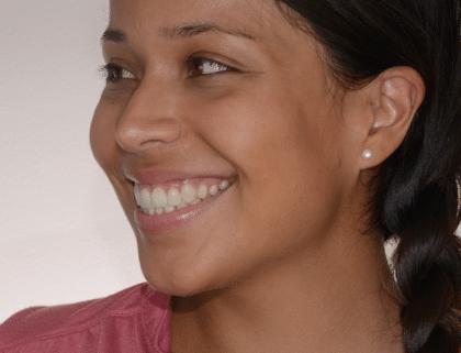 sourire de profil avec facettes dentaires en céramique