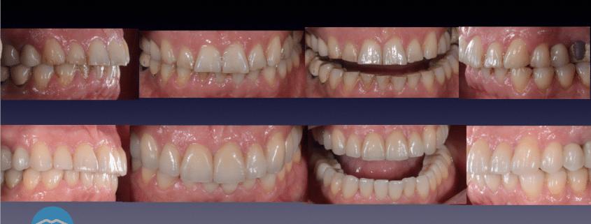 Traitement bruxisme par le dr hervé touati dentiste à lyon