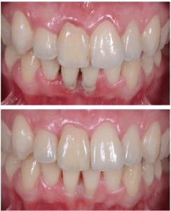 Gingivite avant et après traitement de la gencive