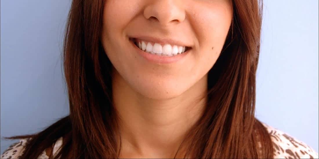 bouche après blanchiment dentaire