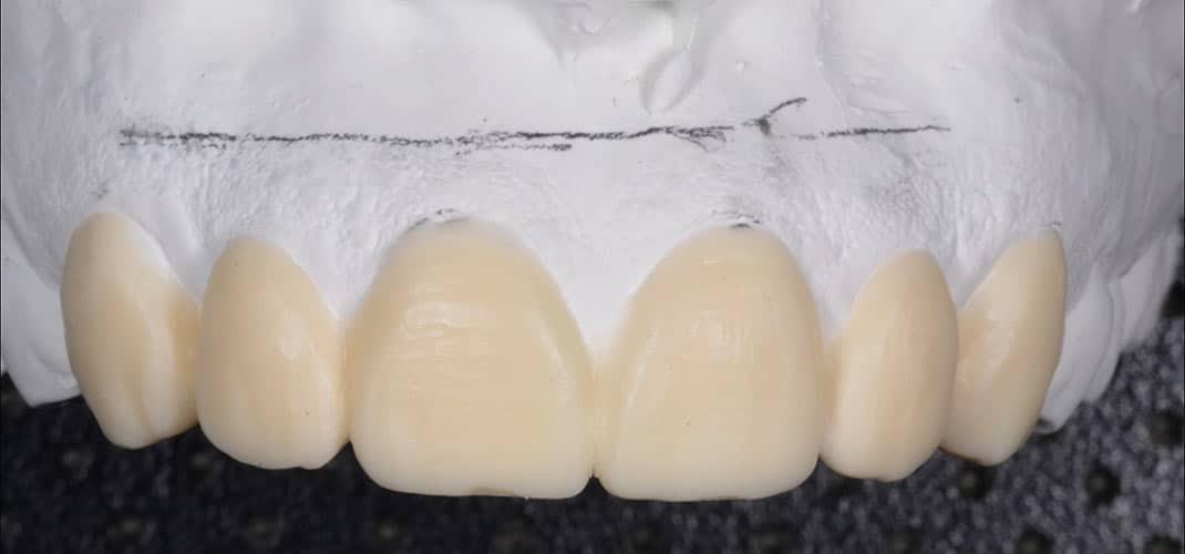 Empreinte Wax-up pour prévisualisation soins esthétique du sourire