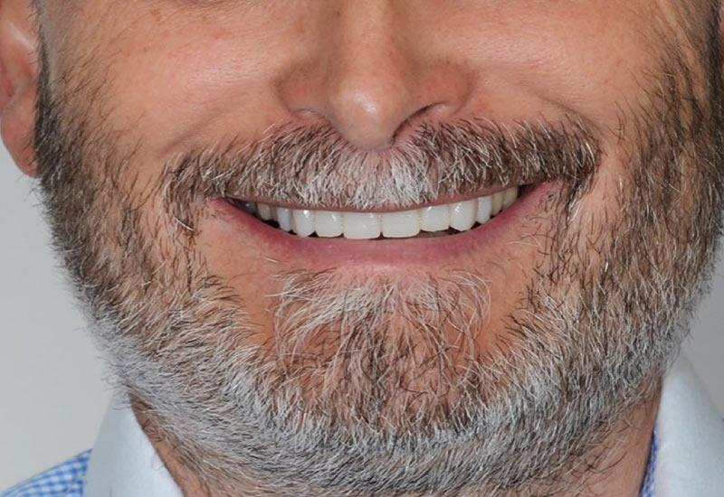 traitement bruxisme grincement des dents