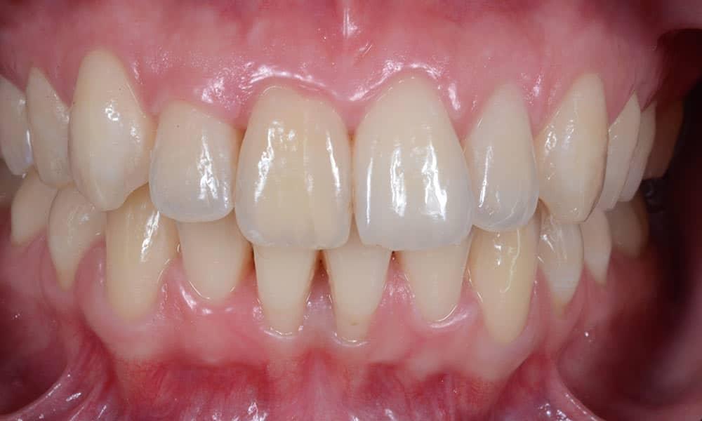 traitement parodontite déchaussement des dents