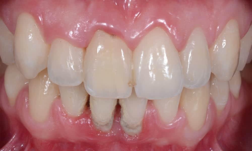 déchaussement des dents bouche avant traitement parodontal