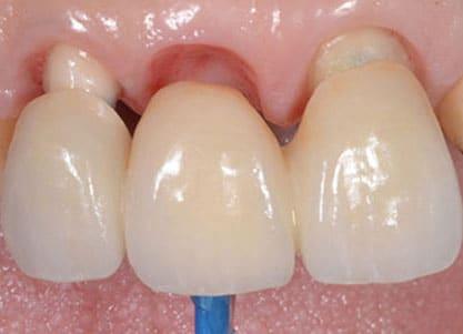pose bridge dentaire
