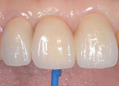 bridge dentaire lyon