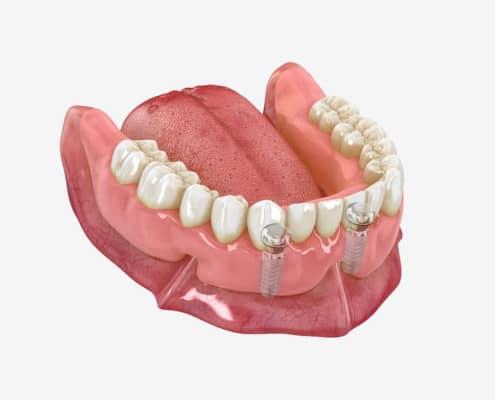 illustration 3D implants dentaires intégrés dans la mâchoire