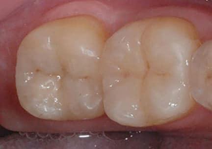 onlay en céramique pose prothèses dentaires à lyon