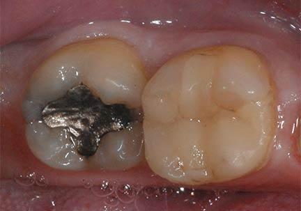 plombage avant pose onlay prothèse dentaire