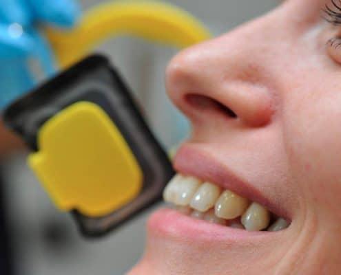 sourire patient cabinet dentaire à lyon